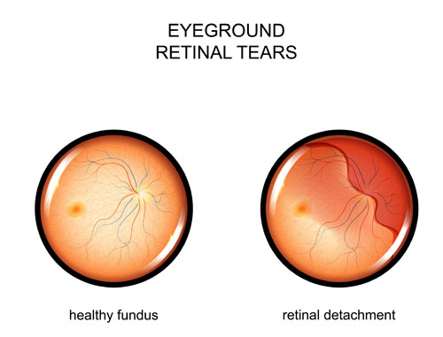 Retinal Tear Diagram