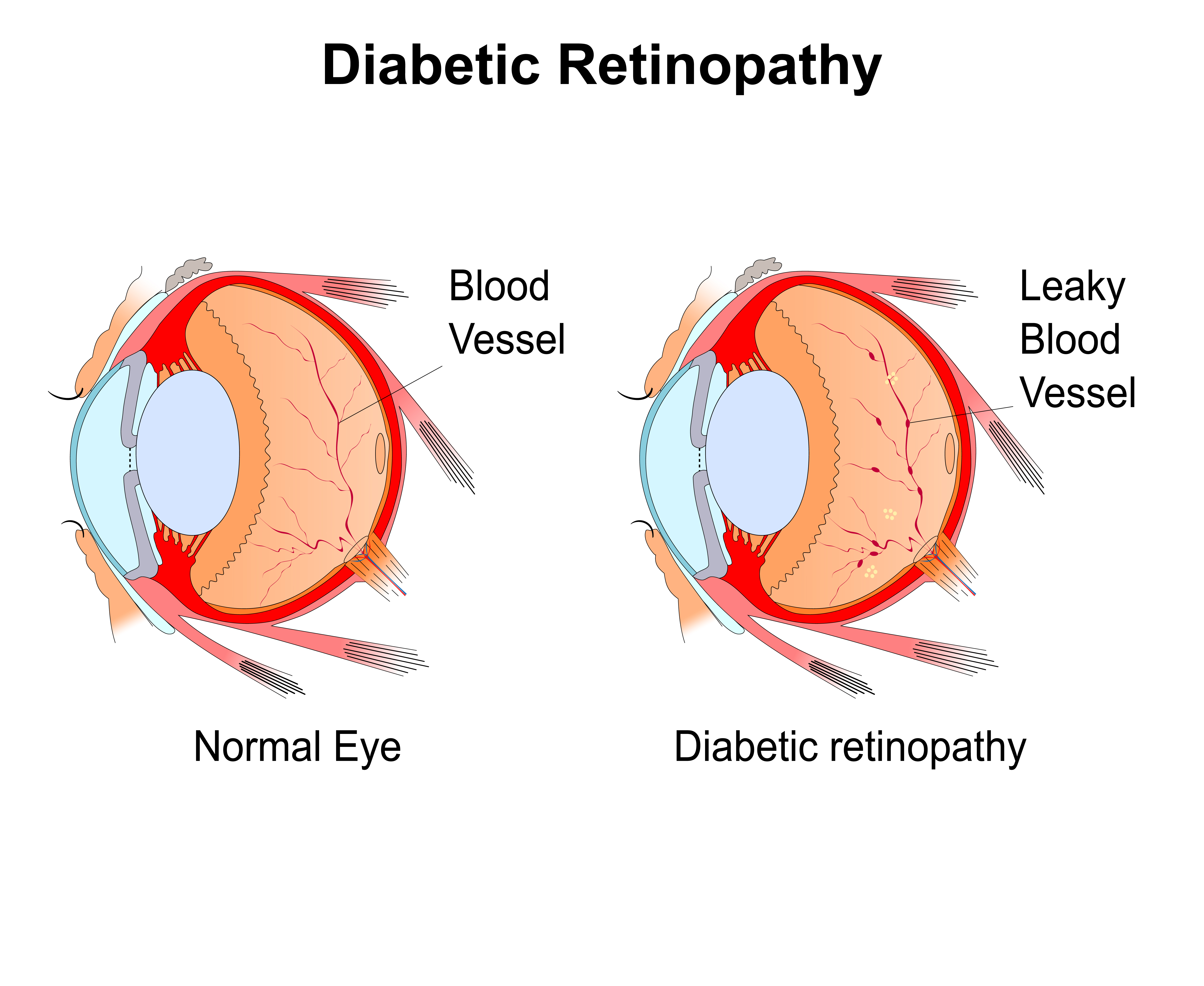 Diabetic Eye Diagram